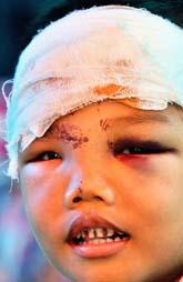 En skadad pojke i Bantul i Indonseien. Det området fick de största skadorna i jordbävningen. Foto: Jewel Samad/PrB