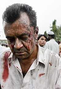 Han överlevde. En skadad man lämnar ett av de sprängda tågen i Bombay i Indien. Foto: Pressens Bild
