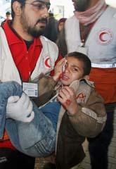 Många vanliga människor har dödats och skadats i kriget. Bilden visar en skadad pojke i Gaza. Foto: Ashraf Amra/Scanpix.