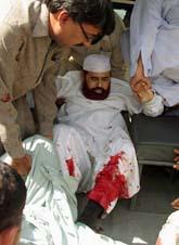Pakistans minister för religion sköts i benet av en terrorist. Foto: AP/Scanpix