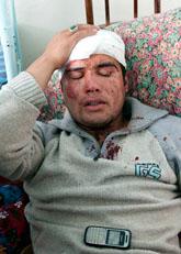 Många har skadats och dödats i bråken i södra Kirgisistan, Foto: Dalton Bennet/Scanpix