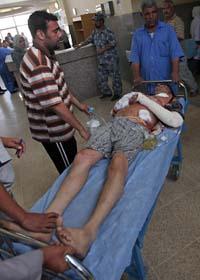 En skadad man förs till sjukhus efter en självmords-attack i Bagdad. Foto: Karim Kadim/AP/Scanpix