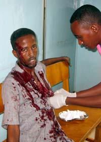 En skadad man får vård på sjukjus i Somalias  huvudstad Mogadishu. Foto: Mohamed Sheikh Nor/AP/Scanpix