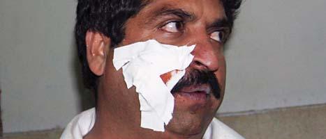 Minst 22 människor dödades av bomben i Pakistan.  Foto: Scanpix