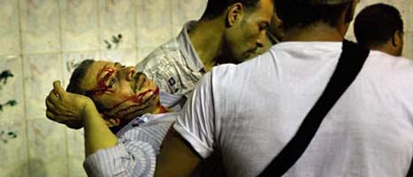 En skadad man bärs bort från bråken i Kairo. Foto: Nasser Nasser/Scanpix