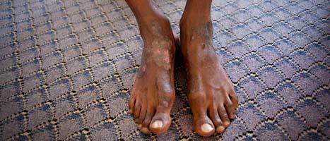 En torterad mans fötter i Libyen. Mannen är misstänkt för att ha stött den tidigare ledaren Gaddafi. Foto: Manu Brabo/AP/Scanpix