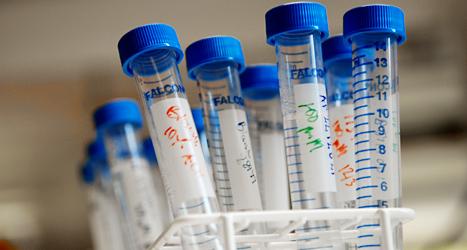 Läkarna använder provrör när de undersöker vilken sjukdom någon har. Foto: TT