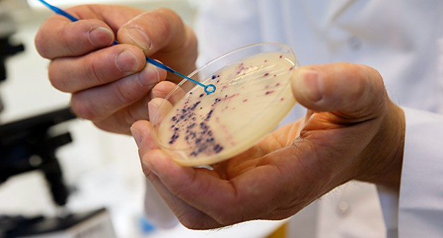 En hand håller ett glasfat med bakterier.
