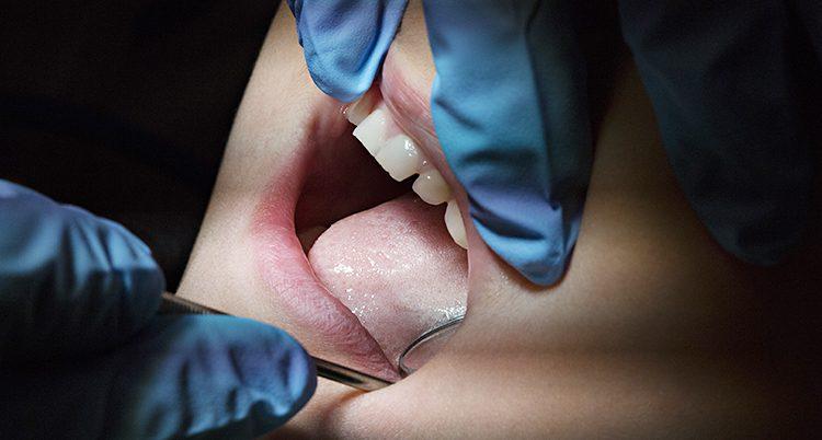 En tandläkare tittar in i munnen på en person.