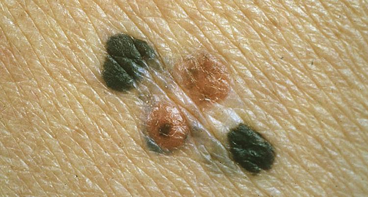 En närbild på fura hudfläcar. Två svarta och två röda.