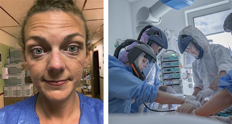 Två bilder. Den ena visar sköterskans ansikte. Hon har märken efter skydden som hon måste ha på sig. Den högra bilden visar personal på ett sjukhus som hjälper en patient. Alla har blå skyddskläder och munskydd på sig.